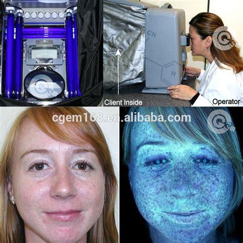 wood l skin analysis cg 102 skin analyzer machine skin scope f102 skin