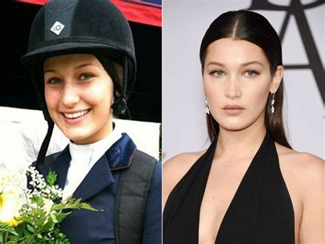 bella hadid beauty surgery 218 best images about plastic on pinterest before and