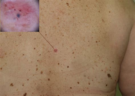 About My Skin Cancer by Skin Cancer Non Melanoma Causes Symptoms Treatment