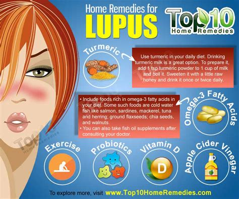 Home Remedies For Lupus by Suppressed Immune System And Diabetes Proteinuria