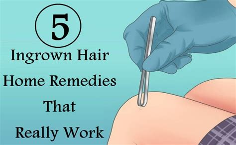 5 ingrown hair home remedies that really work care