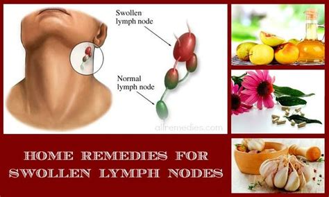 Swelling In And Joints Liver Detox by Top 30 At Home Solutions To Treat Swollen Lymph Nodes In