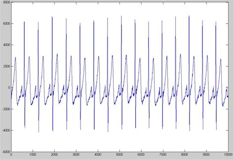 high pass filter signal processing matlab how to filter a discrete signal signal processing stack exchange