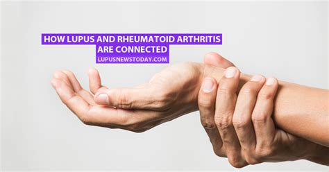 how lupus and rheumatoid arthritis are connected lupus news today