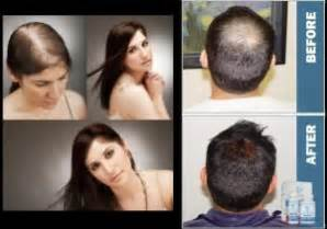 women hair loss before and after provillus natural hair provillus for women