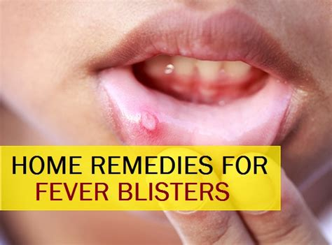 fever blisters home remedies pictures to pin on