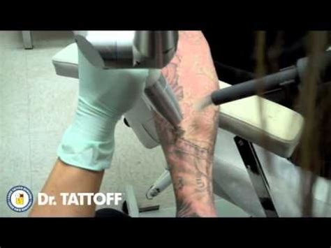 tattoo removal houston removal before and after half sleeve laser