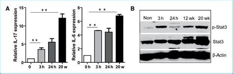 Csueb Mba Options by Il 17 Enhances Tumor Development In Carcinogen Induced