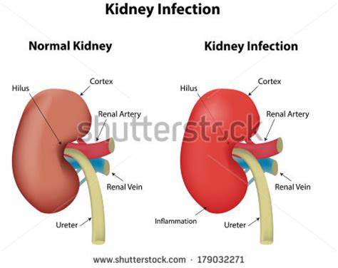 kidney infection kidney infection stock photos images pictures