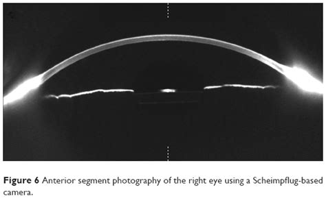 ophthalmic imaging posterior segment imaging anterior eye photography and slit l biomicrography applications in scientific photography books text capsular block a report and