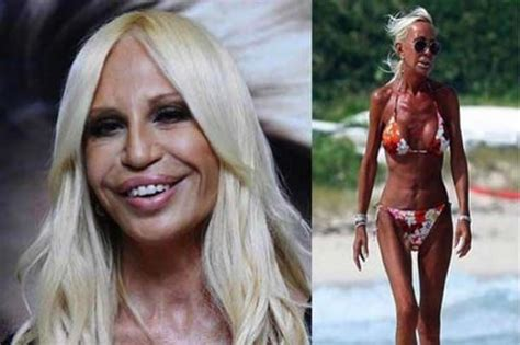 lyn may plastic surgery cirug 237 as pl 225 sticas desastrosas marcianos
