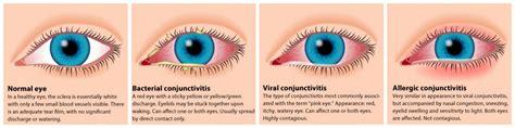 pink eye treatment pediatric center