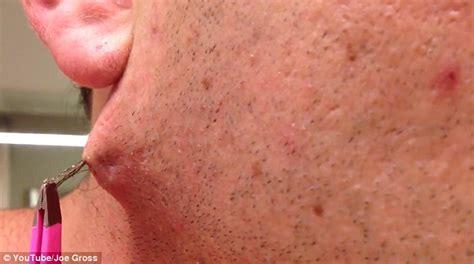 ingrown hair on chin infection how to get rid of ingrown hairs remedies for ingrown hair