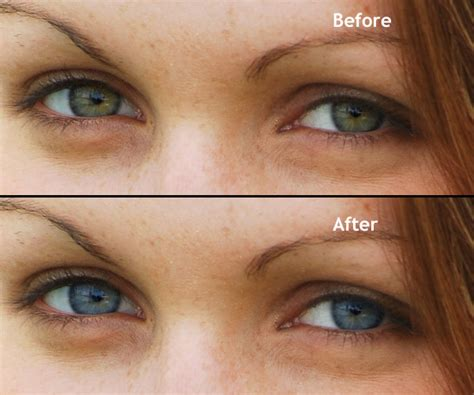 change eye color naturally eye color change www pixshark images