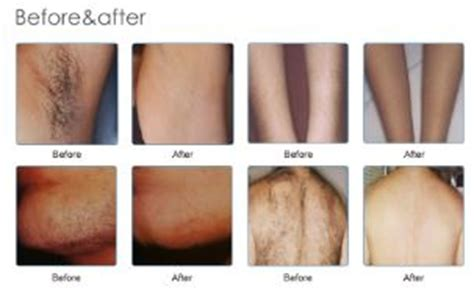 diode laser hair removal before and after price list diode laser permanent hair reduction exhale rejuvenation