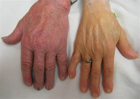 anemia skin color iron deficiency anemia definition clinical diagnosis