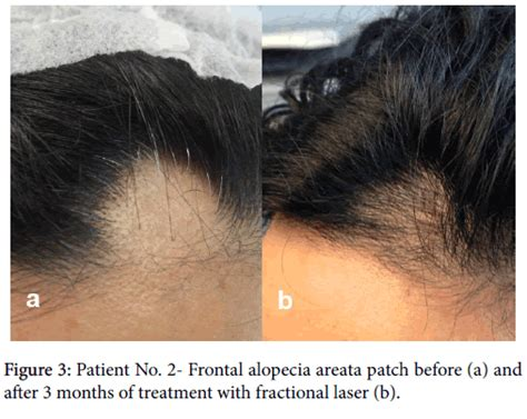 before and after photos alopecia antrogenetic women alopecia areata good response to treatment with