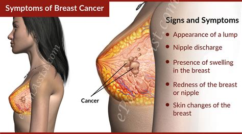 cancer symptoms hospitals in nairobi offering free breast cancer screening yululate