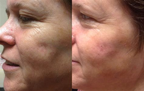 bellafill for results of acne scars acne scar treatment with bellafill yelp