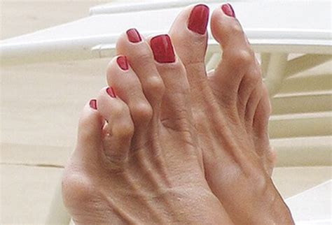 what is the inn color for toes for spring hammertoes picture image on medicinenet com