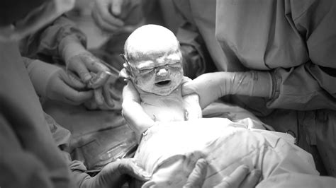 Another Baby After C Section by Oh Look Another Study To Make C Section Feel Guilty