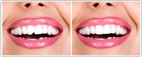 chipped tooth don t sweat it east islip cosmetic dentist
