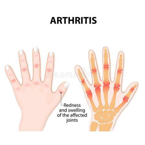 arthritis definition of arthritis by the free dictionary hand with arthritis stock vector image 83187144
