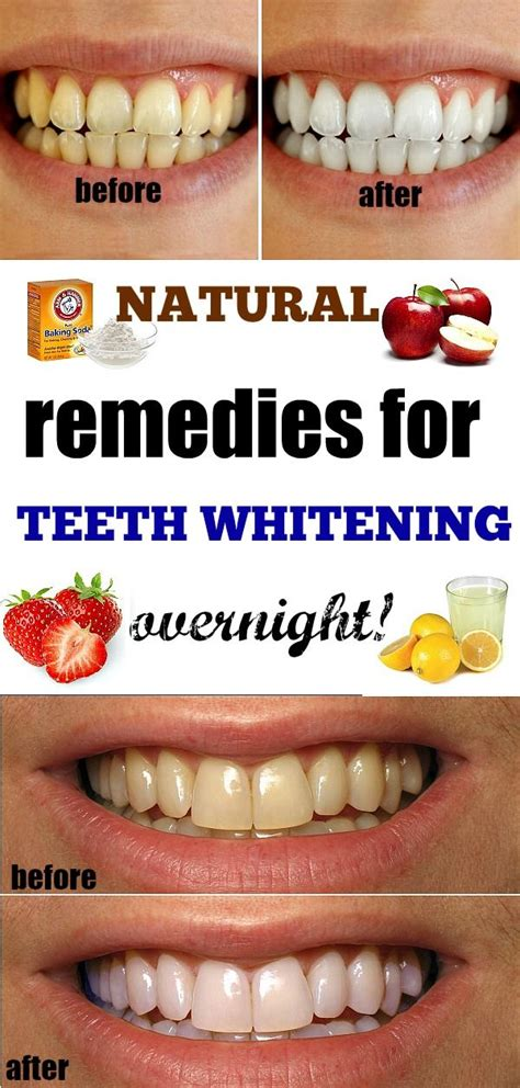 ideas  instant teeth whitening  pinterest