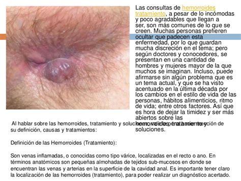 emorroide interne hemorroides tratamiento