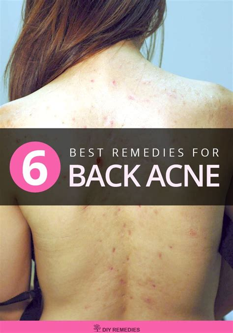 Effective Home Remedies For Acne by Home Remedies For Back Acne Here Are Some Effective Home
