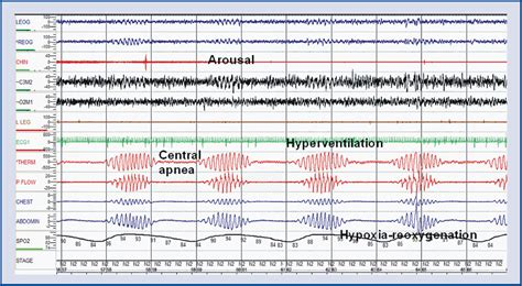 breathing pattern in heart failure sleep disordered breathing in patients with heart failure