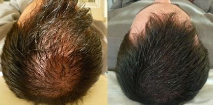 scalp micropigmentation to make hair ticker pictures scalp micro pigmentation permanent makeup scalp micro
