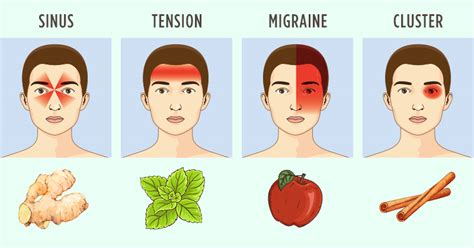 Will Detoxing My Make My Headaches Go Away by Types Of Headaches And Effective Remedies Health