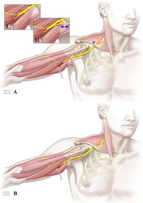spinal accessory nerve  triceps muscle transfer