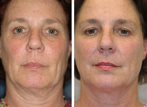 aging jaw line jowls jawline aamlc vancouver canada