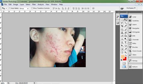 tutorial photoshop cs6 menghilangkan jerawat cara mudah menghilangkan jerawat pada wajah dengan