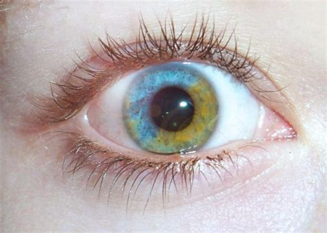 what determines eye color what determines your eye color
