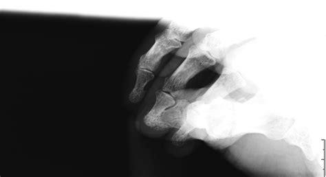 rx horizonte imagenes medicas y odontologicas sobre t 233 cnicas de im 225 genes m 233 dicas blog stim rx de pene
