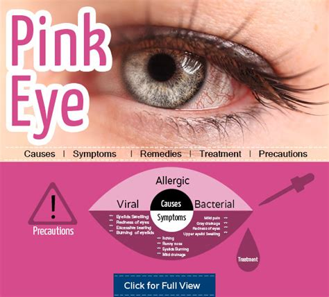 can you get pink eye from a top 10 home remedies to get relief from pink eye