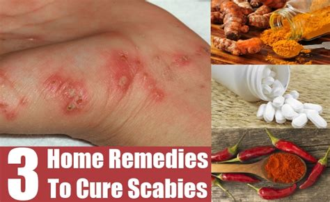 top 3 home remedies to cure scabies diy health remedy