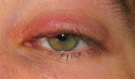 imagenes de ojos inflamados c 243 mo desinflamar los p 225 rpados r 193 pido y sus causas