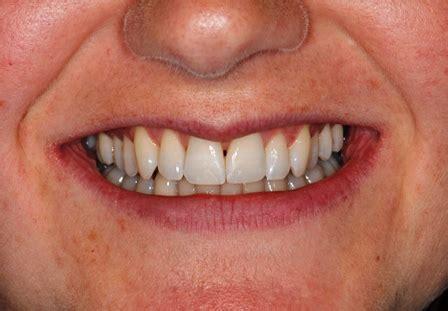 straight teeth braces village dental centre