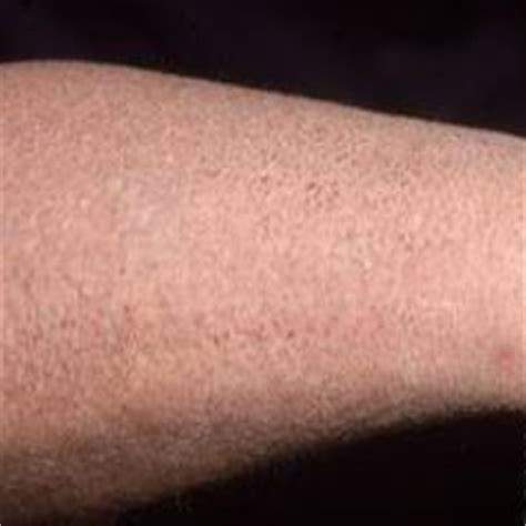 flaky skin 5 primary causes of flaky skin common reasons for flaky skin girlishh