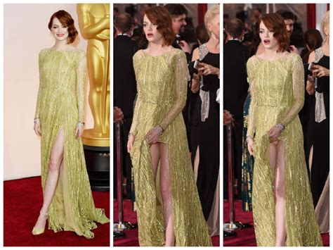 oscars 2015 faces a wardrobe malfunction
