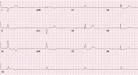 atrial fibrillation with bradycardia exle 2