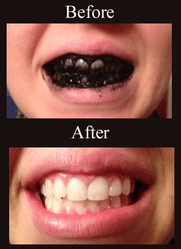 how to whiten teeth with charcoal | wellness mama