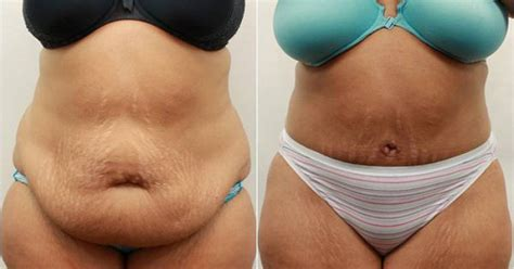 When Can You A Tummy Tuck After C Section by Dr Darm Tummy Tuck Before And After Tv Tummy Tucks