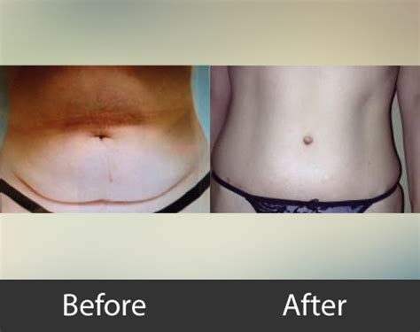 can i have a tummy tuck after c section tummy tuck surgery odessa tx midland tx