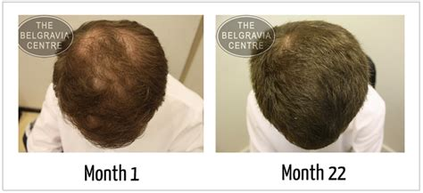 male pattern hair loss reversal top 10 questions about male pattern baldness answered