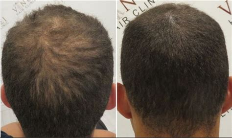 scalp micropigmentation to make hair ticker pictures 42 best images about scalp micropigmentation on pinterest